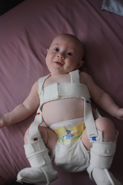Noah in his Palvik Harness for hip dysplasia.