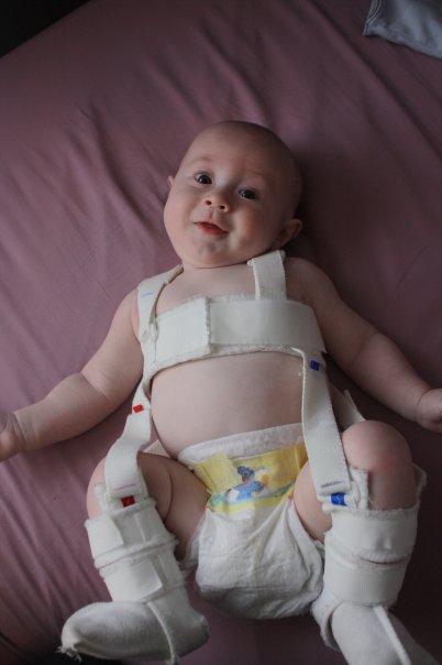Noah in his Palvik Harness for hip dysplasia.